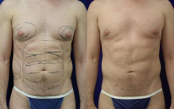 patient-12298-body-liposuction-before-after
