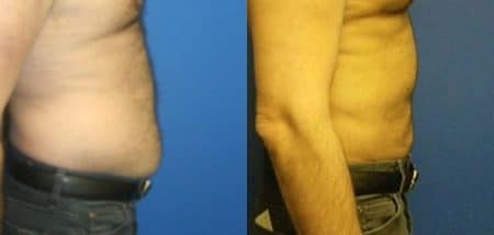 patient-12305-body-liposuction-before-after
