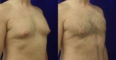 patient-12308-body-liposuction-before-after