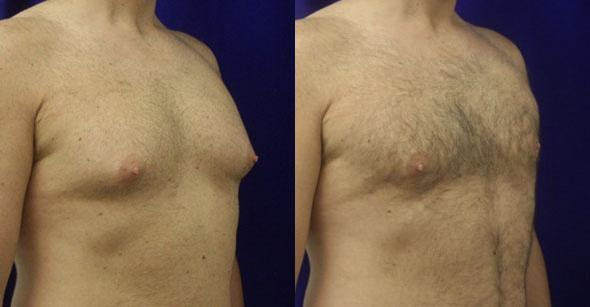 Image of a male breast with reduced fat and athletic built after breast reduction surgery, New York, NY
