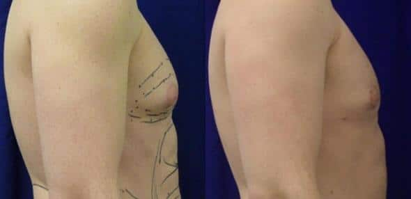 patient-12317-body-liposuction-before-after-1
