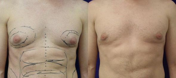 Image comparing breast of a male patient who had a breast reduction surgery. The breast is contoured with no man boobs after the procedure, New York, NY