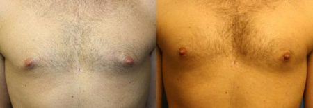 patient-12322-body-liposuction-before-after