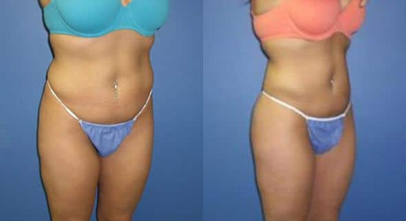 Liposuction before and after in new york