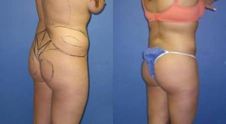 patient-12327-body-liposuction-before-after-2