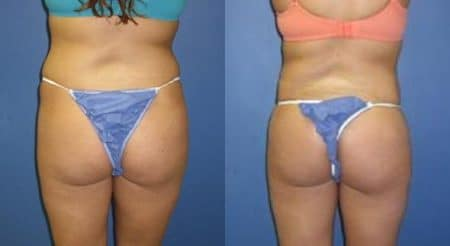 patient-12327-body-liposuction-before-after-4