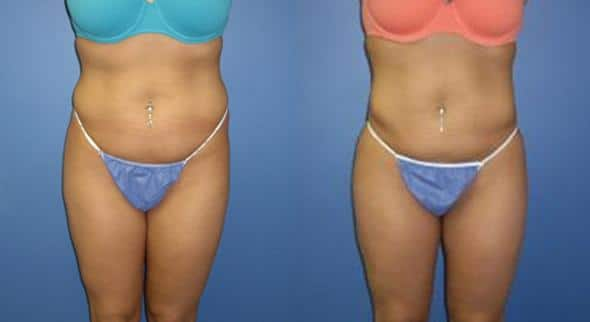 patient-12327-body-liposuction-before-after