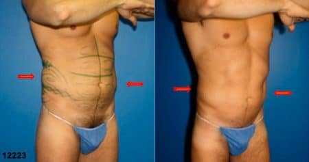 patient-12343-body-liposuction-before-after-1
