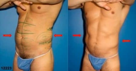 patient-12343-body-liposuction-before-after-2