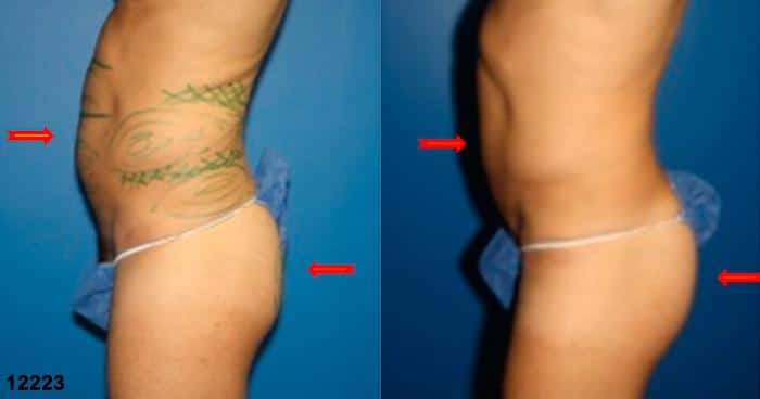 patient-12343-body-liposuction-before-after-4