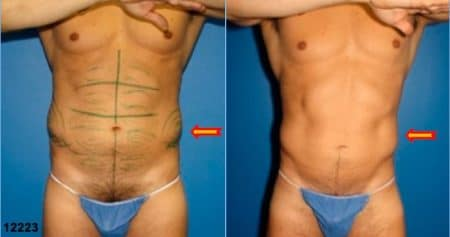 patient-12343-body-liposuction-before-after