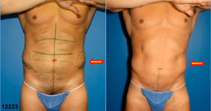 image doing side to side comparison of a male body with fat and reduced definition before, gets more contoured and gets rid of the excessive fat after body banking procedure, New York, NY