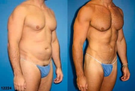 patient-12358-body-liposuction-before-after-1