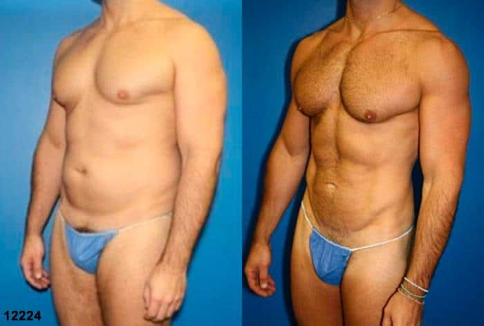 patient-12358-body-liposuction-before-after-2