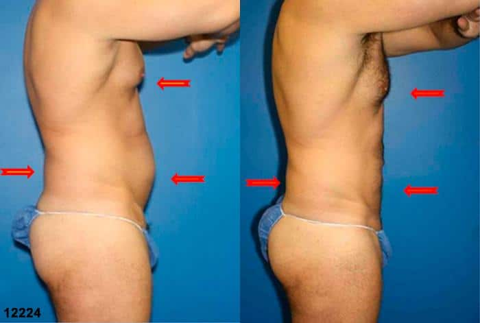 patient-12358-body-liposuction-before-after-3