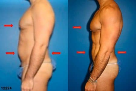 patient-12358-body-liposuction-before-after-4
