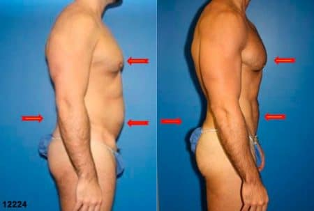patient-12358-body-liposuction-before-after-5
