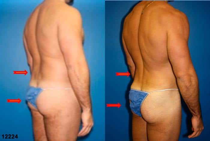patient-12358-body-liposuction-before-after-6