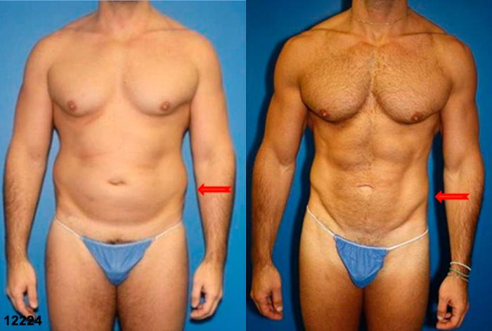 Male liposuction before and after in new york