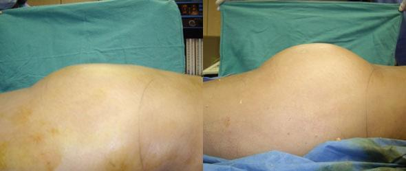 patient-12373-gluteal-augmentation-before-after