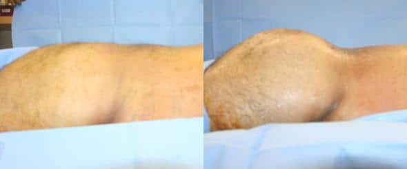 patient-12379-gluteal-augmentation-before-after