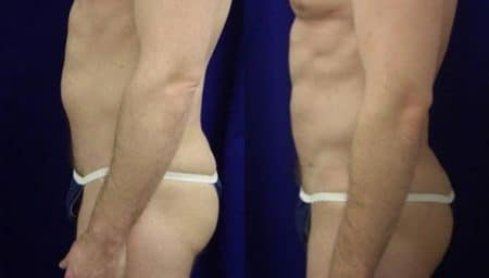 patient-12382-gluteal-augmentation-before-after-1