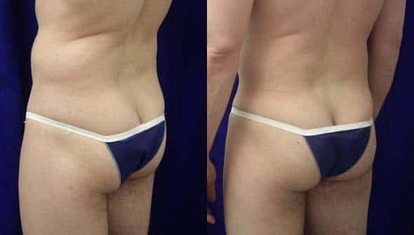 patient-12382-gluteal-augmentation-before-after