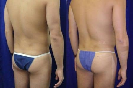 patient-12387-gluteal-augmentation-before-after