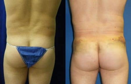 patient-12390-gluteal-augmentation-before-after-1