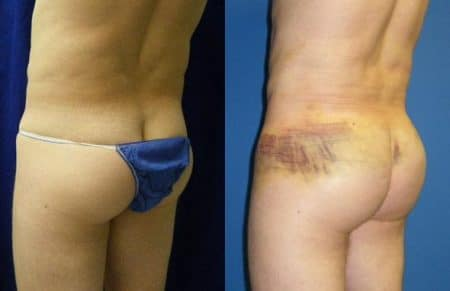 patient-12390-gluteal-augmentation-before-after