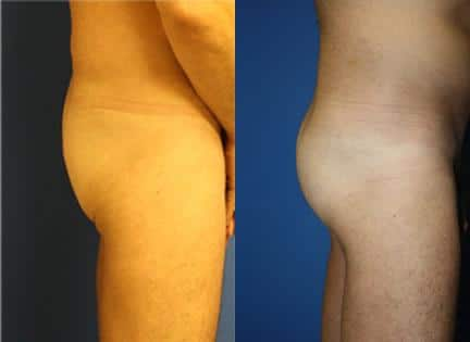 patient-12395-gluteal-augmentation-before-after