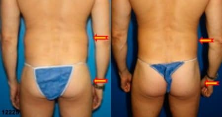 patient-12398-gluteal-augmentation-before-after-1