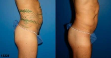 patient-12398-gluteal-augmentation-before-after-2