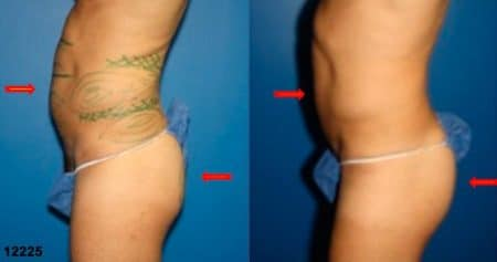 patient-12398-gluteal-augmentation-before-after-3