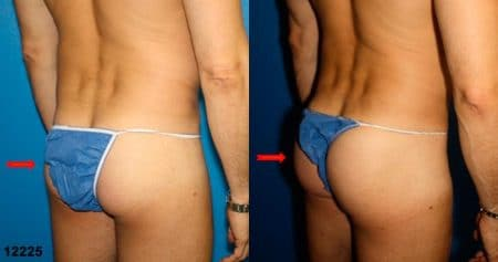 patient-12398-gluteal-augmentation-before-after-4