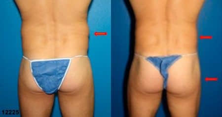 patient-12398-gluteal-augmentation-before-after
