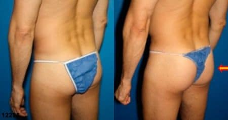 patient-12398-gluteal-augmentation-before-after-5