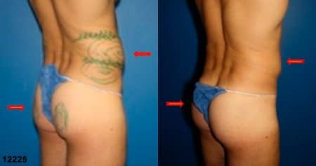 patient-12398-gluteal-augmentation-before-after-6