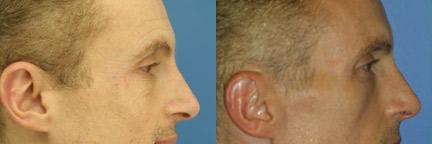 patient-12419-wrinkle-treatments-before-after-1