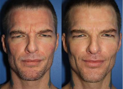 patient-12424-wrinkle-treatments-before-after