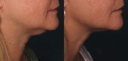 patient-12433-ulthera-before-after
