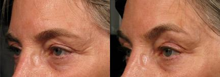 patient-12439-ulthera-before-after