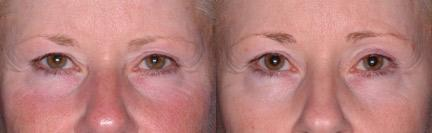 patient-12442-ulthera-before-after