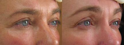 patient-12445-ulthera-before-after