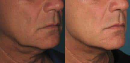 patient-12450-ulthera-before-after