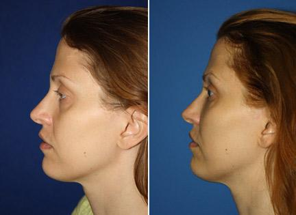 patient-12453-ulthera-before-after-1