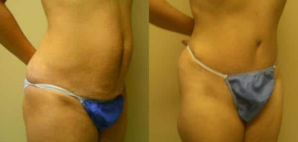 patient-12458-tummy-tuck-abdominoplasty-before-after-1