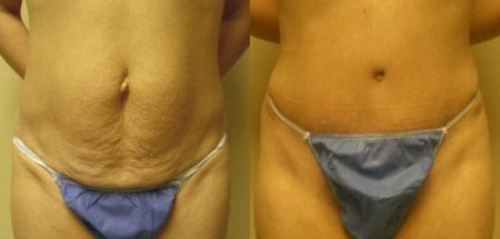 patient-12458-tummy-tuck-abdominoplasty-before-after