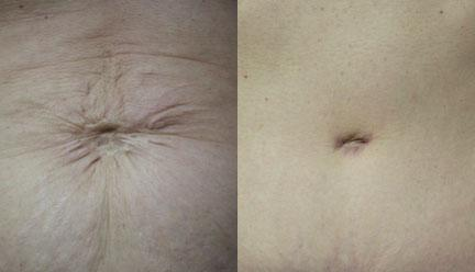 patient-12463-tummy-tuck-abdominoplasty-before-after-2