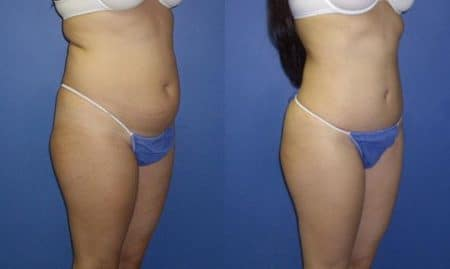 patient-12470-tummy-tuck-abdominoplasty-before-after-1